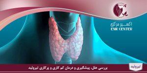 درمان تیرویید پرکار و کم کار