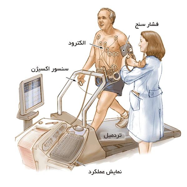 تشخیص تنگی کرونر - انفارکتوس قلبی - تست ورزش