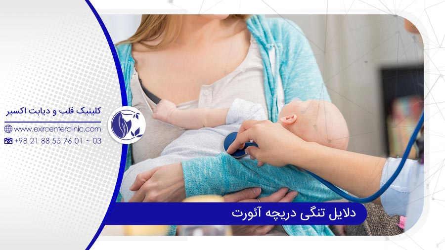 نقص مادرزادی در تنگی دریچه آئورت